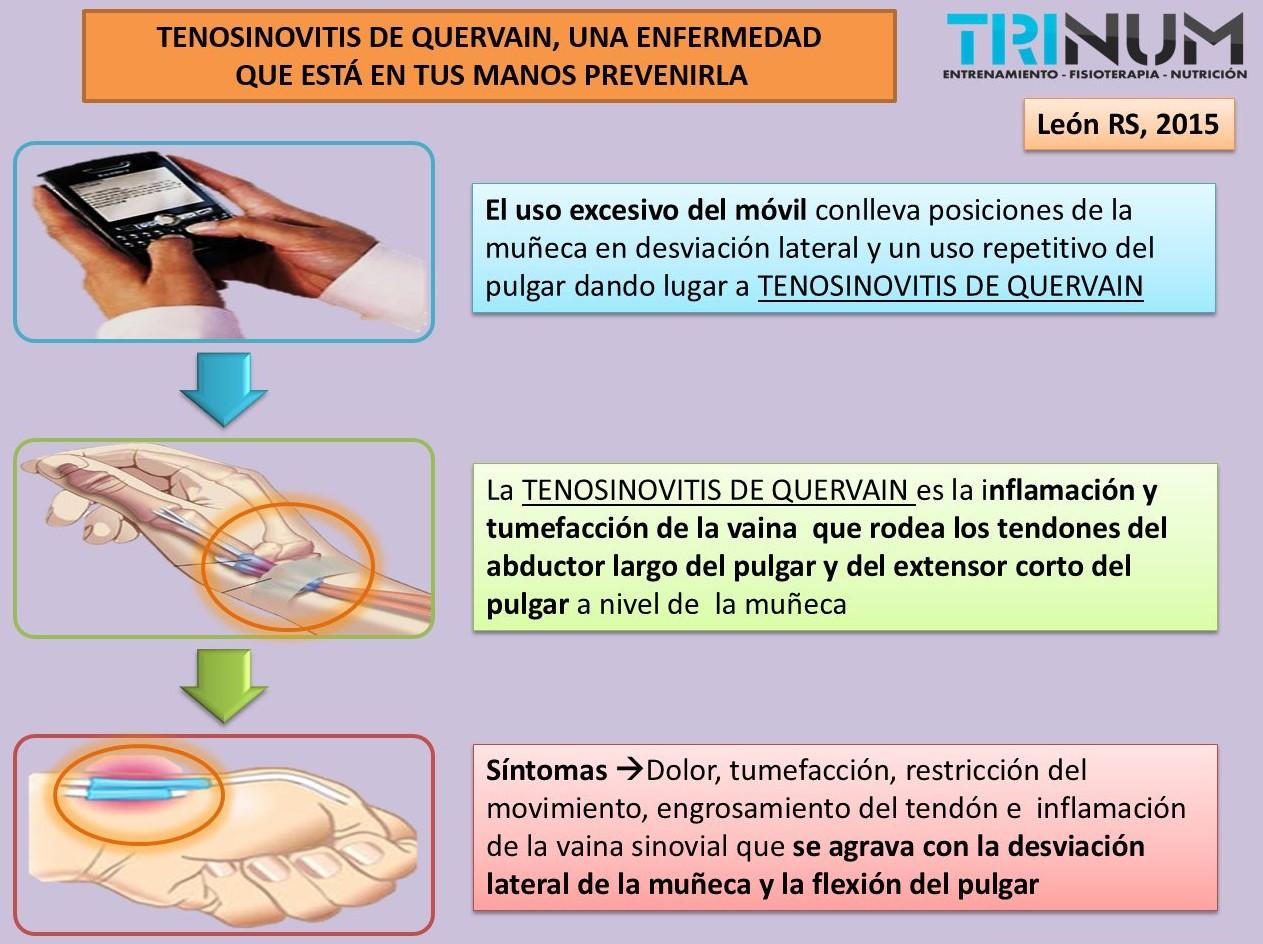tenosinovitis de quervain signos y sintomas de diabetes